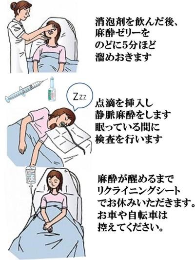 麻酔内視鏡の特徴と検査の流れ