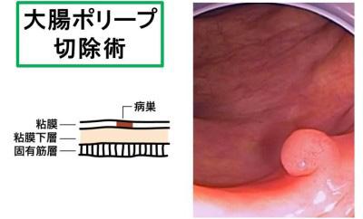 大腸ポリープ切除術1